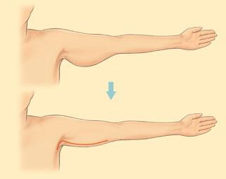 подтяжка кожи рук операция